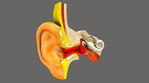 ear infection 3D model