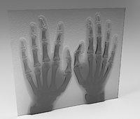 xray hand human bones 3D