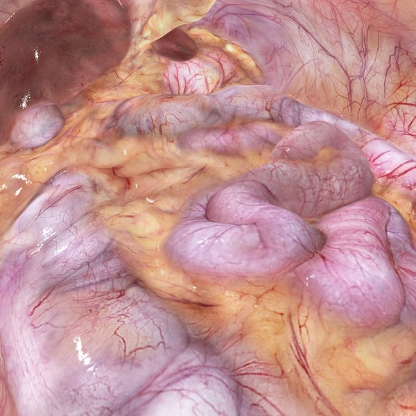 3D abdominal cavity model