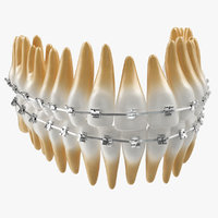 Teeth with Braces Model