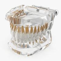 transparent dental typodont teeth 3D
