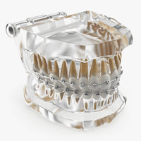 Transparent Dental Typodont Teeth Model With Braces