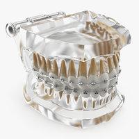 transparent dental typodont teeth 3D model
