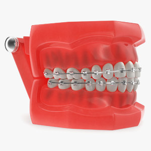 3D typodont teeth brackets modeled model