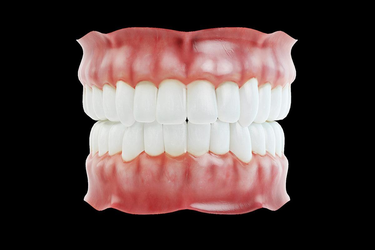 3D human dentures