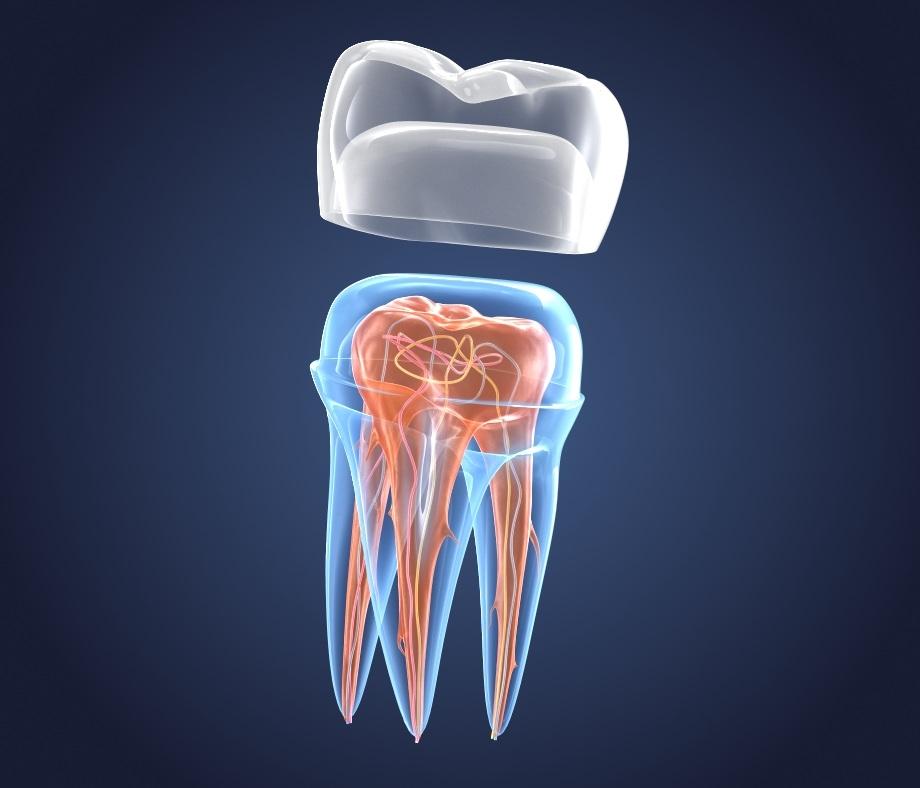 transparent crown endodontics inner 3D