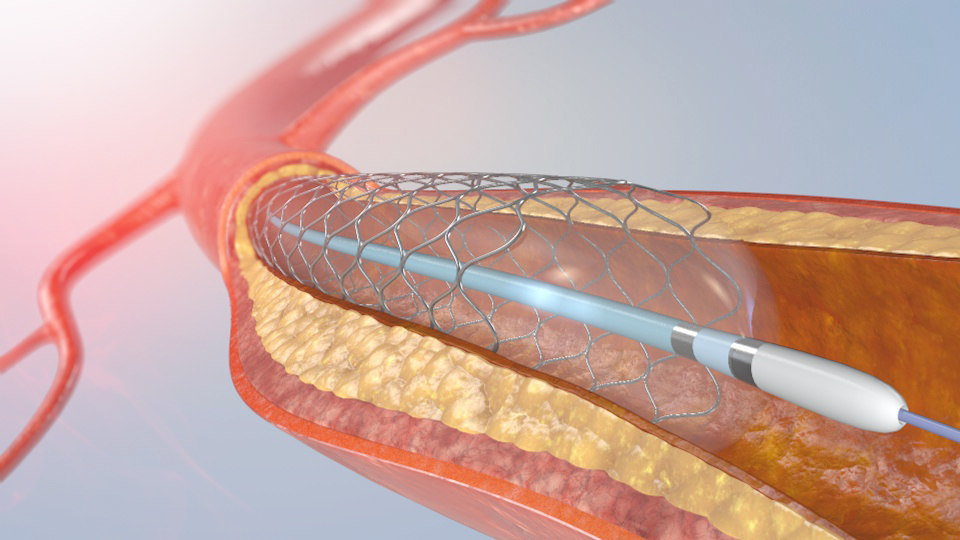 3D model blood stent