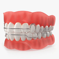 Typodont Tooth Orthodontic Retainer