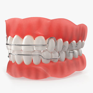 typodont tooth orthodontic retainer model