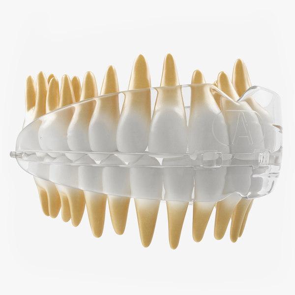 dental orthodontic tooth retainer 3D model