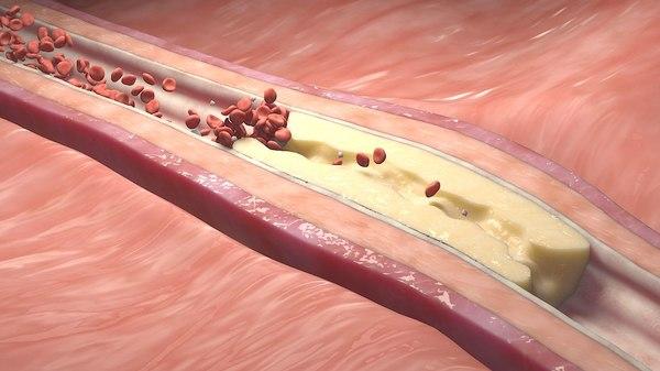 3D bloodstream animation