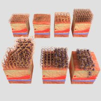 epithelial cell changes 3D
