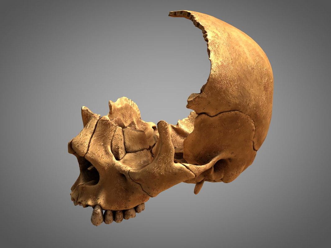 3D ancient shattered human skull