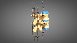 3D human spine fixators model
