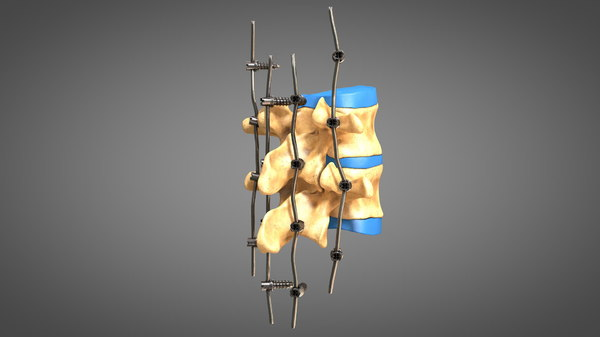 3D human spine fixators model