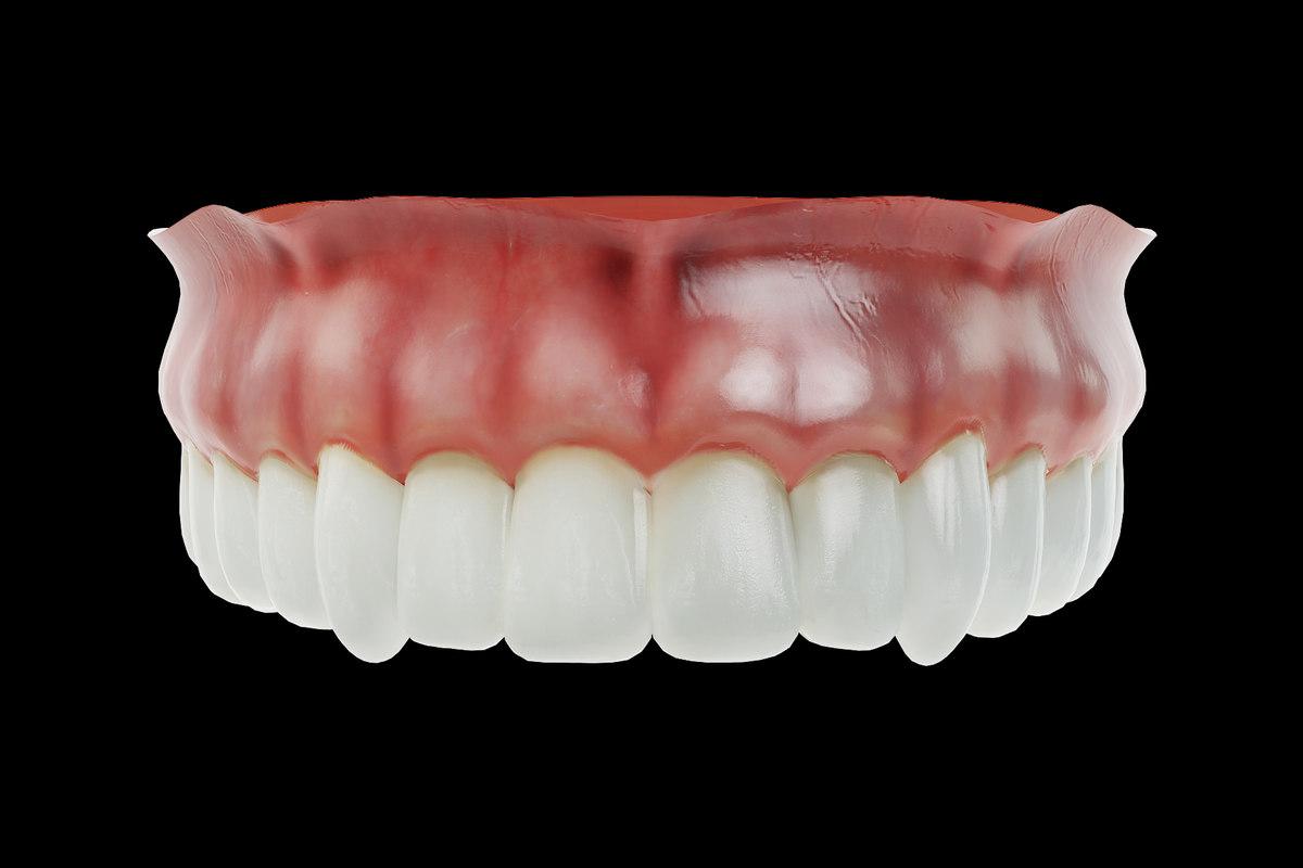 3D model human dentures upper jaw