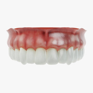 3D model human dentures upper jaw