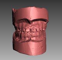 denture human 3D