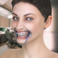 3d female orthodontic teeth face