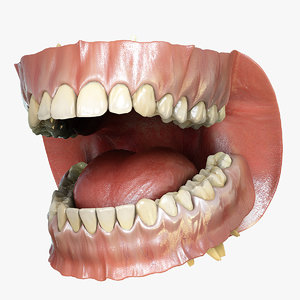 3d model orthodontics mouth teeth