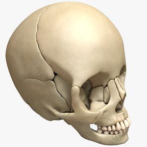 obj human deformed head skull