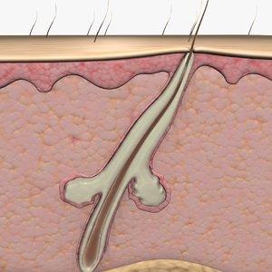 3d acne hair follicle animation