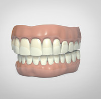 dentures 3d model
