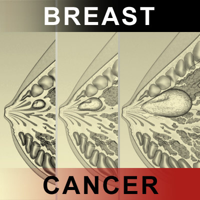 3d model breast cancer laps