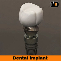 dental implant lwo