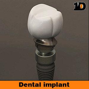 dental implant lwo
