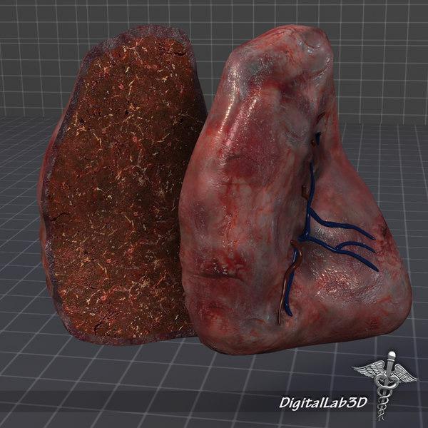 3d model spleen anatomy