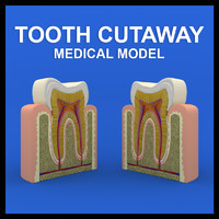 tooth cutaway 3d model