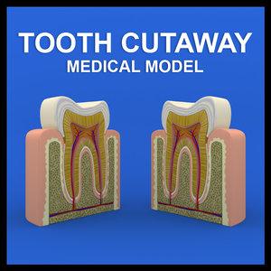 tooth cutaway 3d model