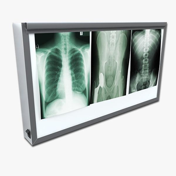 x-ray lightbox lighting 3d model