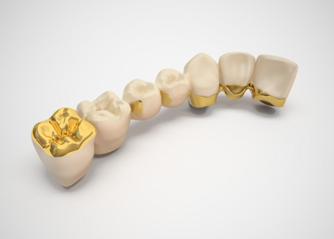 3d model dental bridge