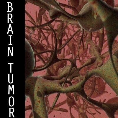 brain tumor 3d model