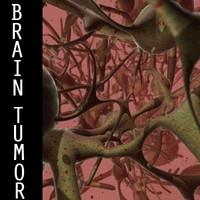 SSS Brain Tumor