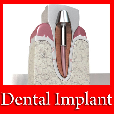 3ds dental implant