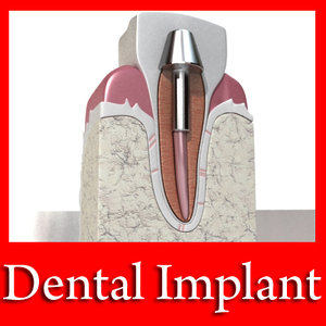 3ds dental implant
