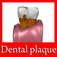 Tooth with Dental Plaque