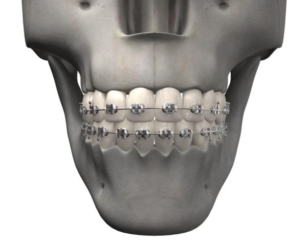 3d medical model
