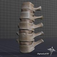 3d human lumbar vertebrae