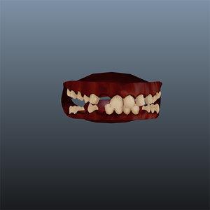maya hillbilly teeth