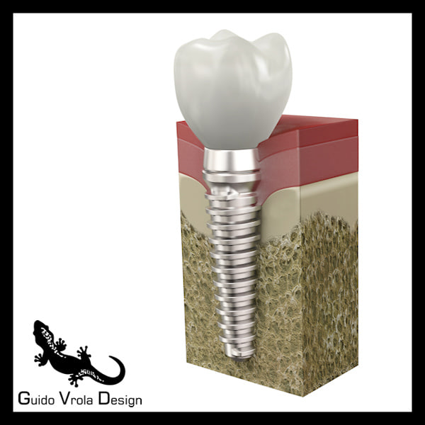 3d 3ds dental implant