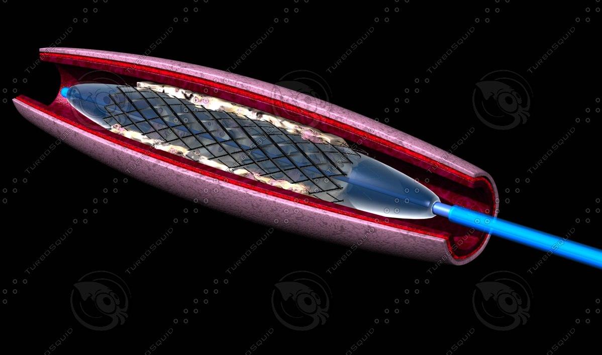 balloon catheter 3d max