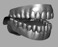 Male Denture