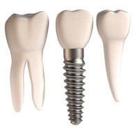 dental implant teeth 3d model