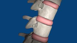 3d model spine spinal decompression