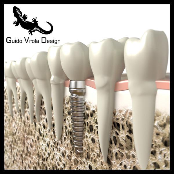 dental implant 3d 3ds