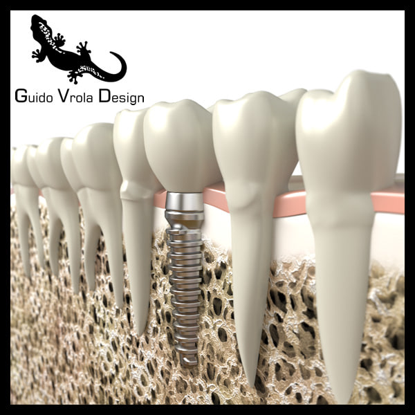 dental implant 3d 3ds